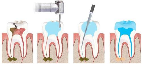 Devitalizzazione di un dente